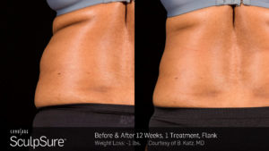 sculpsure-before-and-after-photo-flanks