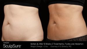 sculpsure-abdomen-and-flanks-before-after-photo