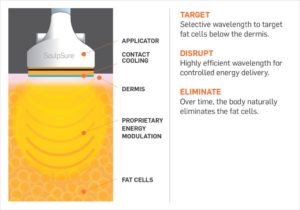 sculpsure-pictorial-explanation