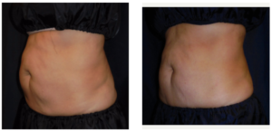 "1 treatment of the abs. Used 4 vertical frames with a ""connector"" to cross the belly button."