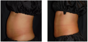 Single treatment of the lower abs with 4 vertical frames. No weight changes.