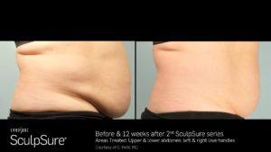 Before & After 2 SculpSure Treatments On Upper & Lower Abdomen and Love Handles