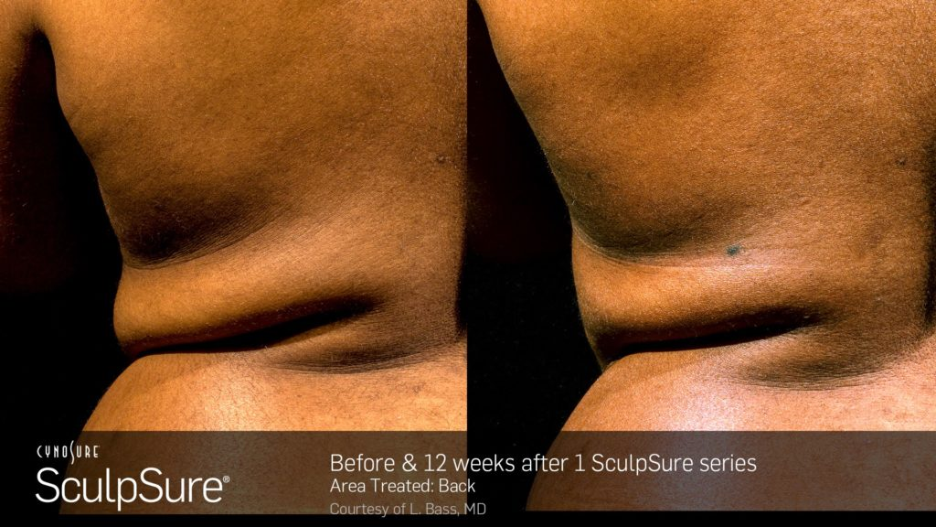 Before & 12 Weeks After SculpSure On The Back