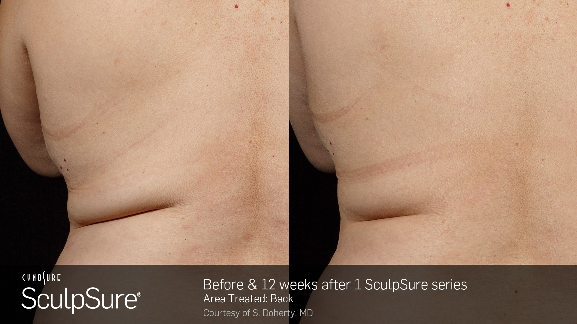 Before Amp After Pictures Of Sculpsure 171 Healthy Living