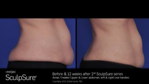 Before & After 2 SculpSure Treatments On Abdomen & Love Handles