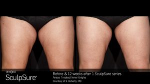 Before & 12 Weeks After 1 SculpSure Treatments On Inner & Outer Thighs