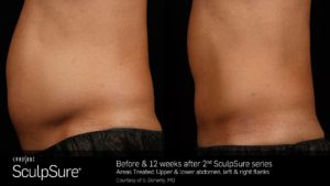Before & 12 Weeks After 2 SculpSure Treatments On Abs