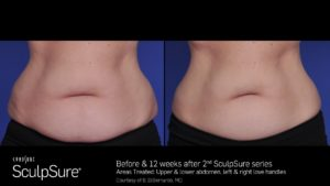 Before & 12 Weeks After 2 SculpSure Treatments On Abdomen & Love Handles