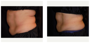 3 treatments of the lower abs and 1 treatment of the upper abs.